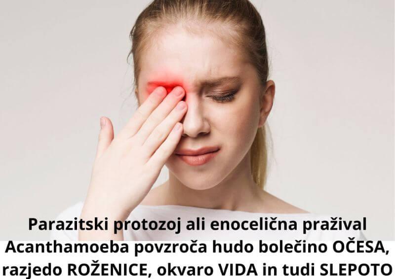 Parazitski protozoj ali enocelična pražival Acanthamoeba SLEPOTA, ROŽENICA, Zapper Zaper Zaperino frekvence