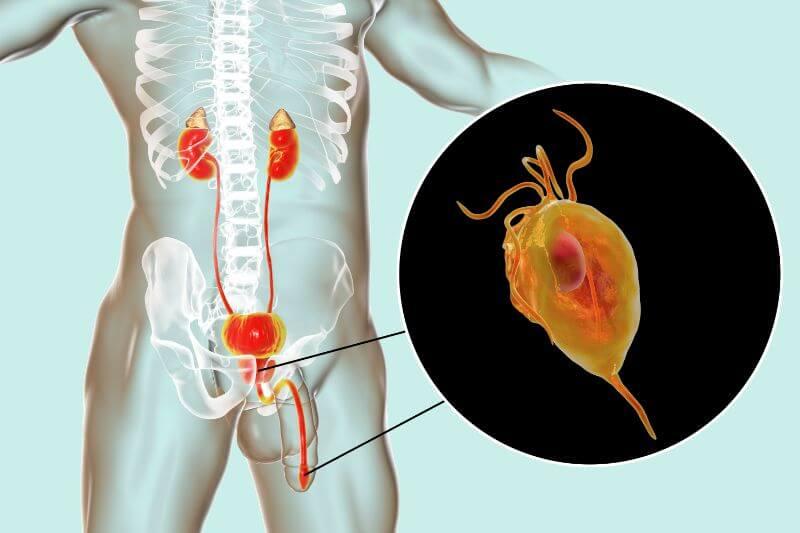 Parazitski protozoji so enocelične praživali - Trichomonas vaginallis povzročajo spolno bolezen - Zapper Zaper Zaperino dr. Clark